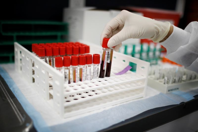 REPRESENTATIVE IMAGE: A health worker takes test tubes with plasma and blood samples after a separation process in a centrifuge during a coronavirus disease (COVID-19) vaccination study at the Research Centers of America, in Hollywood, Florida, U.S., September 24, 2020. (REUTERS File Photo)