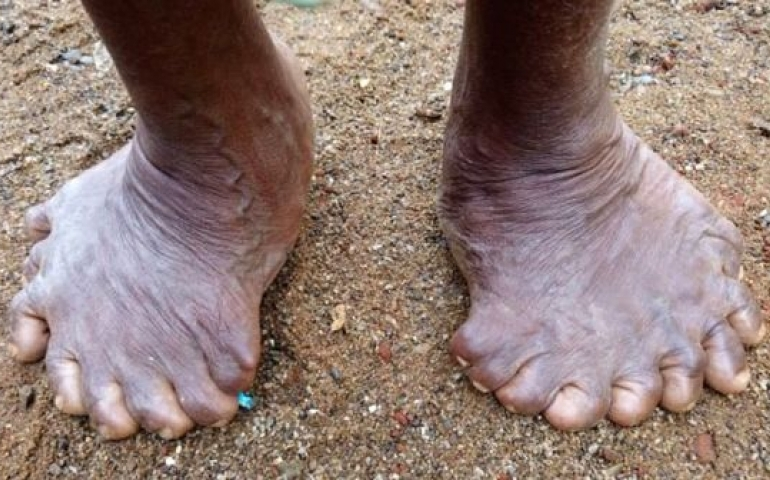 Woman born with 19 toes, 12 fingers sets new record